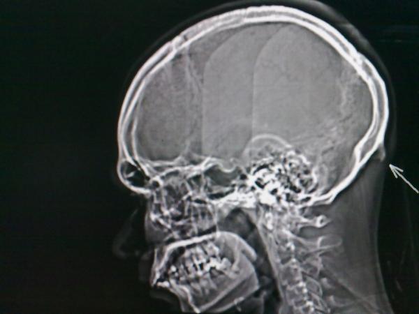 Cắm mặt vào điện thoại, máy tính nhiều làm thay đổi hình dạng hộp sọ của chúng ta?