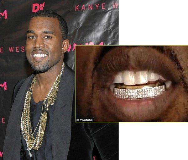 'Ông vua trang sức' gốc Việt - người đứng sau những hàm răng kỳ quái của Katy Perry, Miley Cyrus là ai?
