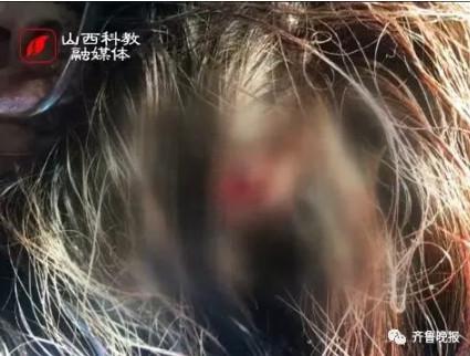 Một cô gái bị chặn đường đánh đập giữa đêm khuya vì không cho add Wechat