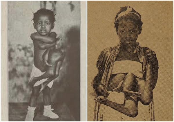 Sinh đôi ký sinh - Sự thật về hội chứng kỳ quái khởi nguồn cho những thước phim kinh dị
