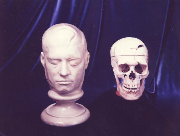 Tai nạn hy hữu trong lịch sử: Bị thanh sắt 109 cm bay xuyên qua đầu, nạn nhân vẫn ngồi dậy nói chuyện bình thường