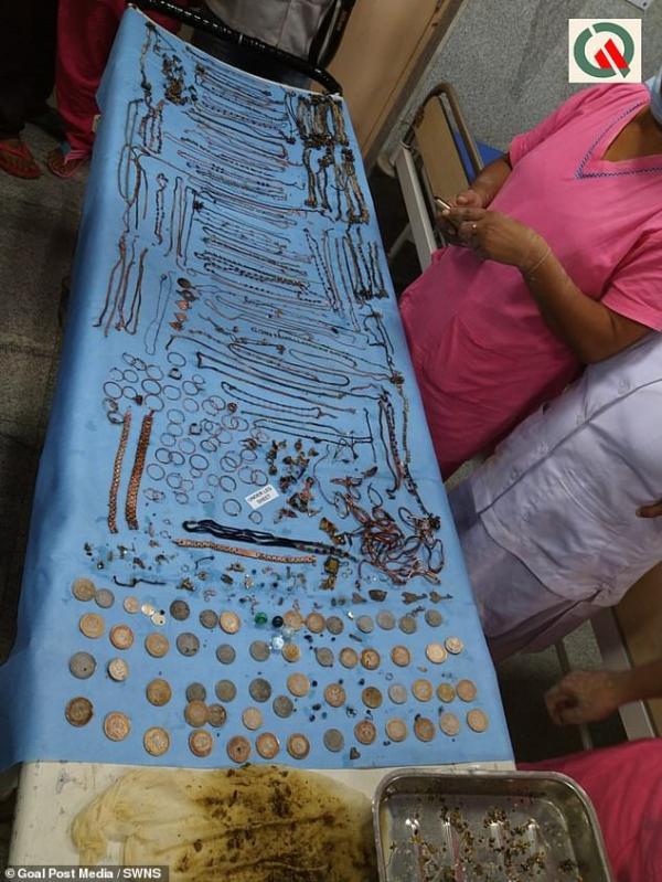 Bác sĩ lôi ra hơn 1,3 kg đồng xu và trang sức trong bụng một phụ nữ Ấn Độ