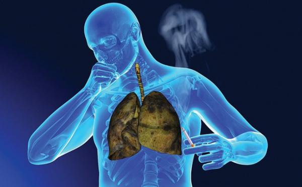 Trớ trêu: Những căn bệnh ung thư nguy hiểm nhất lại nhận được ít vốn tài trợ nghiên cứu nhất