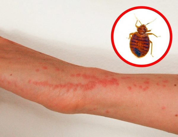 Nhìn vết cắn, 'điểm mặt chỉ tên' ngay loại côn trùng vừa cắn mình