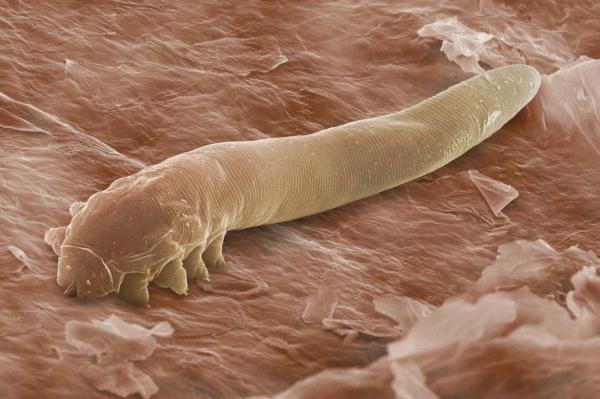 Bạn sẽ thốt lên 'Ghê quá' khi biết những loài sinh vật này đang 'xây nhà' trên cơ thể mình