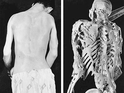 Những căn bệnh kỳ lạ như trong phim đến mức khoa học cũng không thể hiểu nổi (Phần 3)