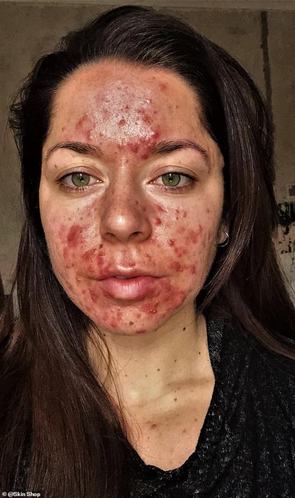 Màn lột xác ngoạn mục của cô gái bị mụn trứng cá huỷ hoại dung nhan