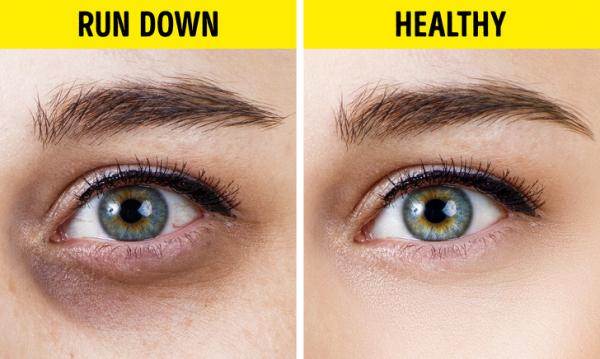 10 thay đổi nhỏ nhưng tiết lộ tình trạng 'báo động đỏ' về sức khỏe của bạn