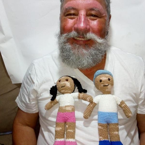 Người đàn ông đan búp bê bạch biến để trẻ em mắc căn bệnh này sống vui vẻ và tự tin trở lại