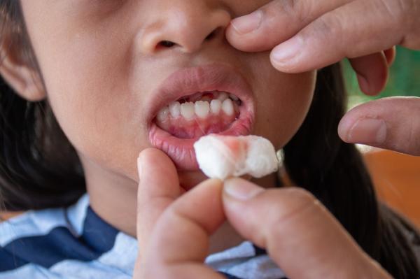Nếu bạn thường xuyên bị chảy máu nướu, hãy thử áp dụng ngay 10 tip đơn giản này