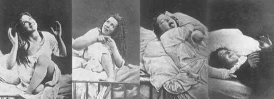 Phương pháp chữa bệnh tâm thần - Góc khuất đen tối trong lịch sử y học