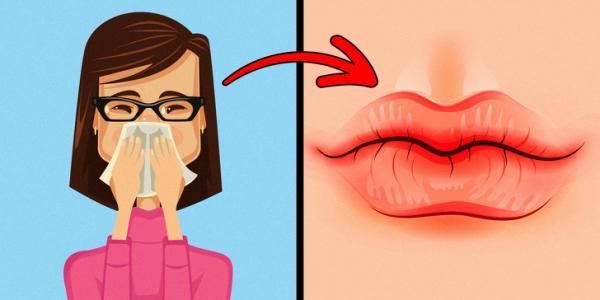 Đừng chủ quan, hãy nhớ những dấu hiệu của đôi môi cho thấy sức khỏe đang 'kêu cứu' bạn